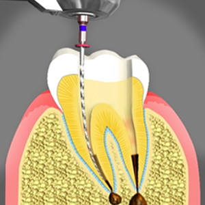 Illustration of close up tooth undergoing root canal treatment